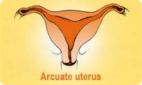 arcuate-uterus